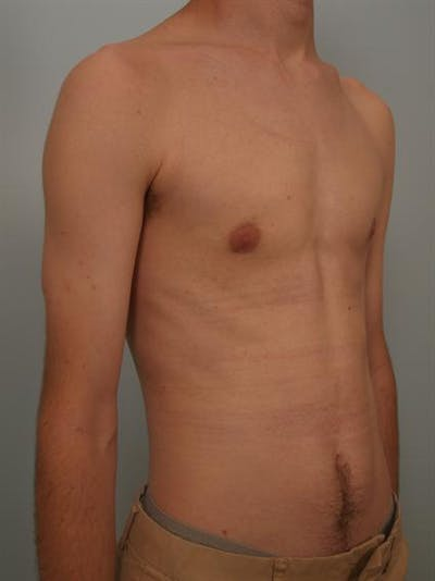 Male Breast/Areola Reduction Gallery - Patient 1311023 - Image 2