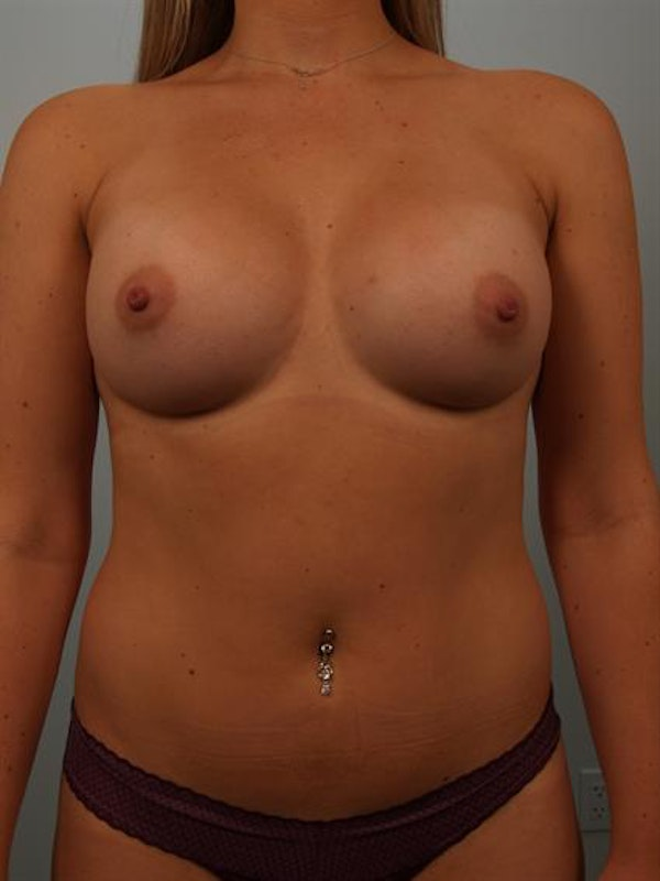 Breast Augmentation Gallery - Patient 1311026 - Image 2