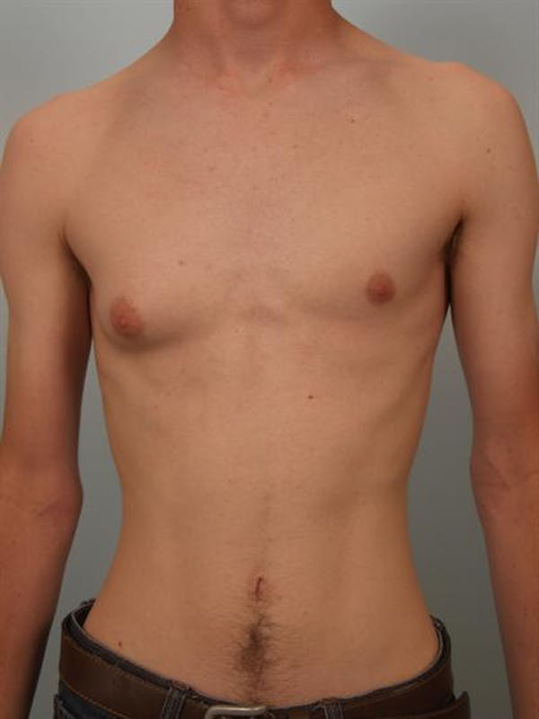 Male Breast/Areola Reduction Gallery - Patient 1311023 - Image 3