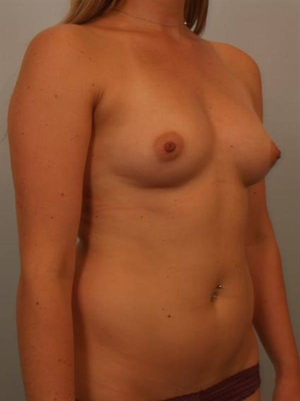 Breast Augmentation Gallery - Patient 1311026 - Image 3