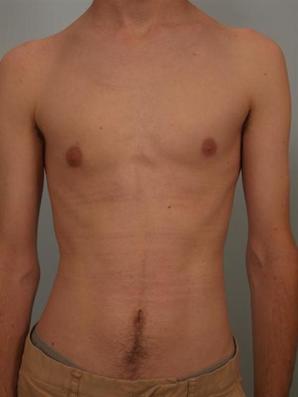 Male Breast/Areola Reduction Gallery - Patient 1311023 - Image 4
