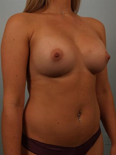 Breast Augmentation Gallery - Patient 1311026 - Image 4