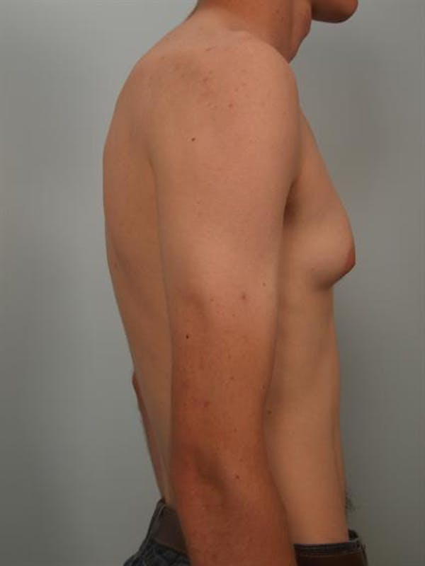 Male Breast/Areola Reduction Gallery - Patient 1311023 - Image 5