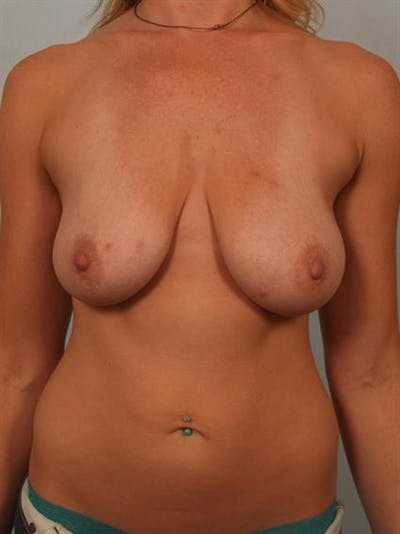 Breast Lift Gallery - Patient 1311027 - Image 1