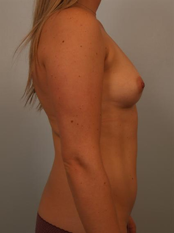 Breast Augmentation Gallery - Patient 1311026 - Image 5