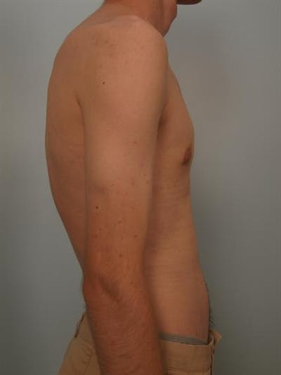 Male Breast/Areola Reduction Gallery - Patient 1311023 - Image 6