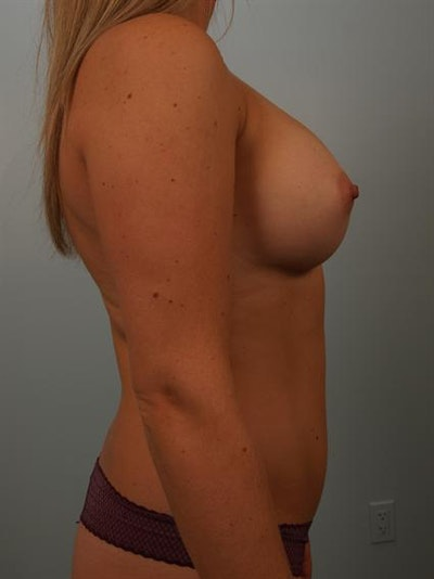Breast Augmentation Gallery - Patient 1311026 - Image 6
