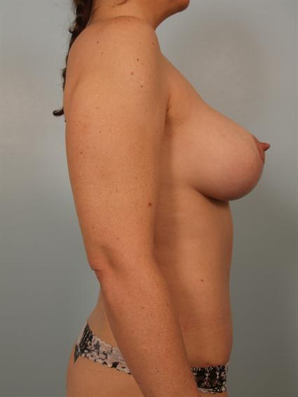 Tummy Tuck Gallery - Patient 1311025 - Image 6