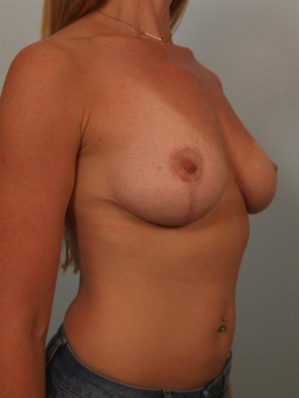 Breast Lift Gallery - Patient 1311027 - Image 4