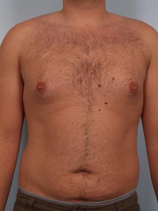 Male Breast/Areola Reduction Gallery - Patient 1311029 - Image 1