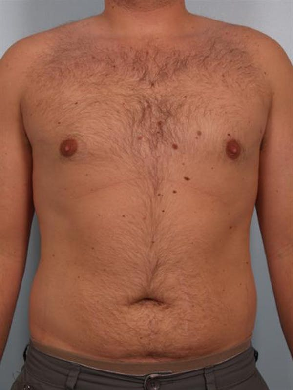 Male Breast/Areola Reduction Gallery - Patient 1311029 - Image 2