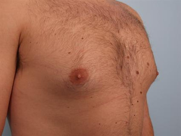 Male Breast/Areola Reduction Gallery - Patient 1311029 - Image 3