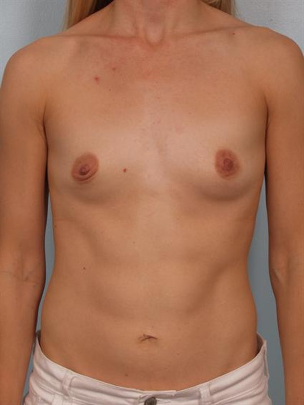 Breast Augmentation Gallery - Patient 1311031 - Image 1