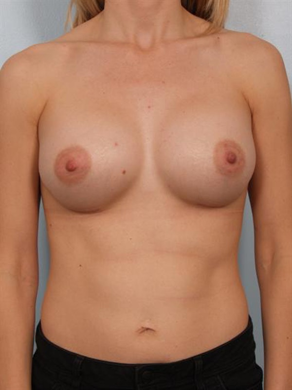 Breast Augmentation Gallery - Patient 1311031 - Image 2