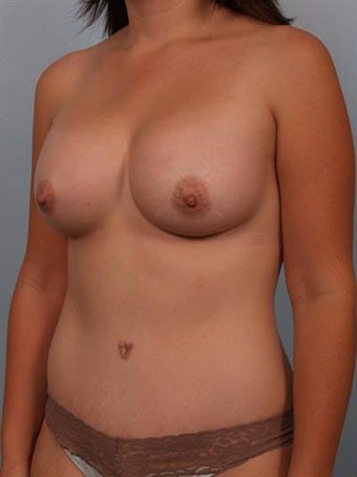 Power Assisted Liposuction Gallery - Patient 1311030 - Image 4