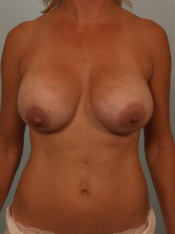 Breast Lift Gallery - Patient 1311032 - Image 1
