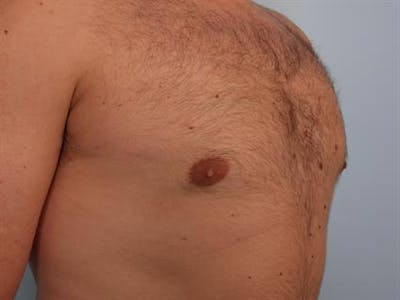 Male Breast/Areola Reduction Gallery - Patient 1311029 - Image 4