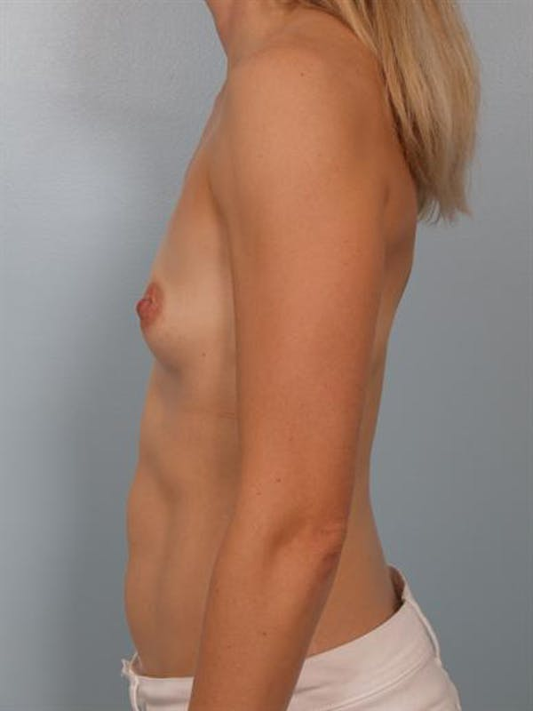 Breast Augmentation Gallery - Patient 1311031 - Image 3