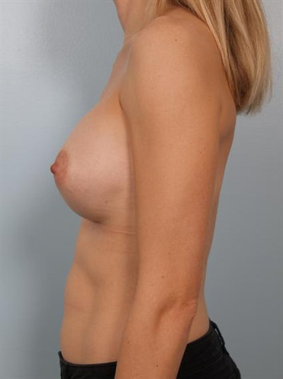 Breast Augmentation Gallery - Patient 1311031 - Image 4