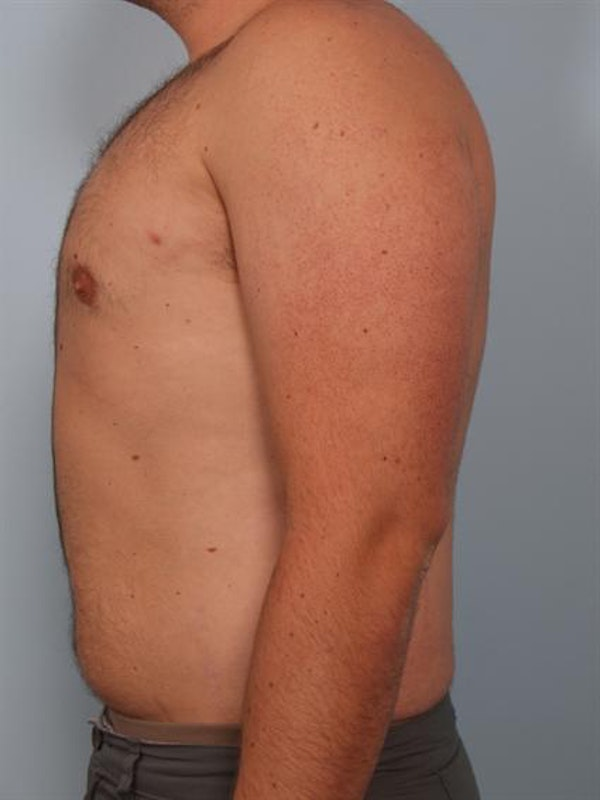 Male Breast/Areola Reduction Gallery - Patient 1311029 - Image 6