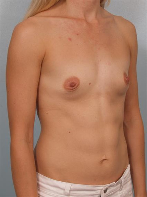 Breast Augmentation Gallery - Patient 1311031 - Image 5