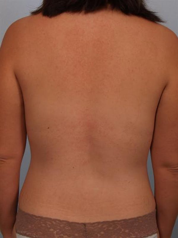 Power Assisted Liposuction Gallery - Patient 1311030 - Image 8