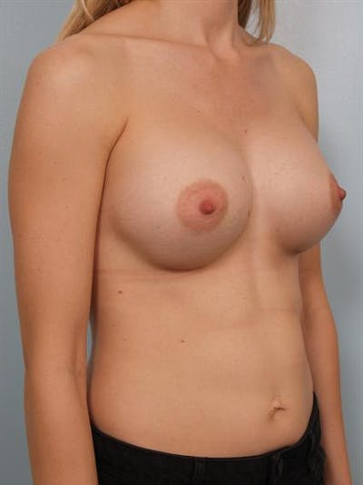 Breast Augmentation Gallery - Patient 1311031 - Image 6