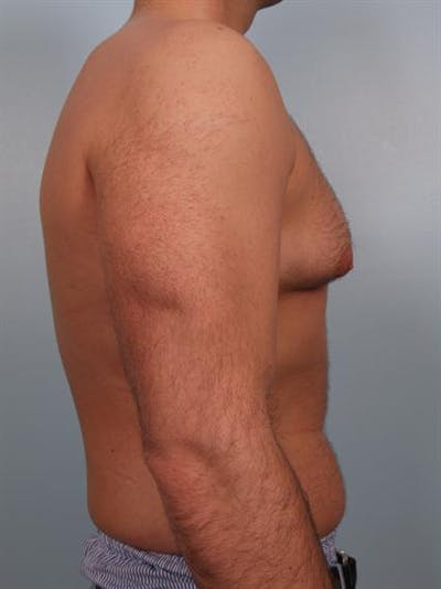Male Breast/Areola Reduction Gallery - Patient 1311034 - Image 1