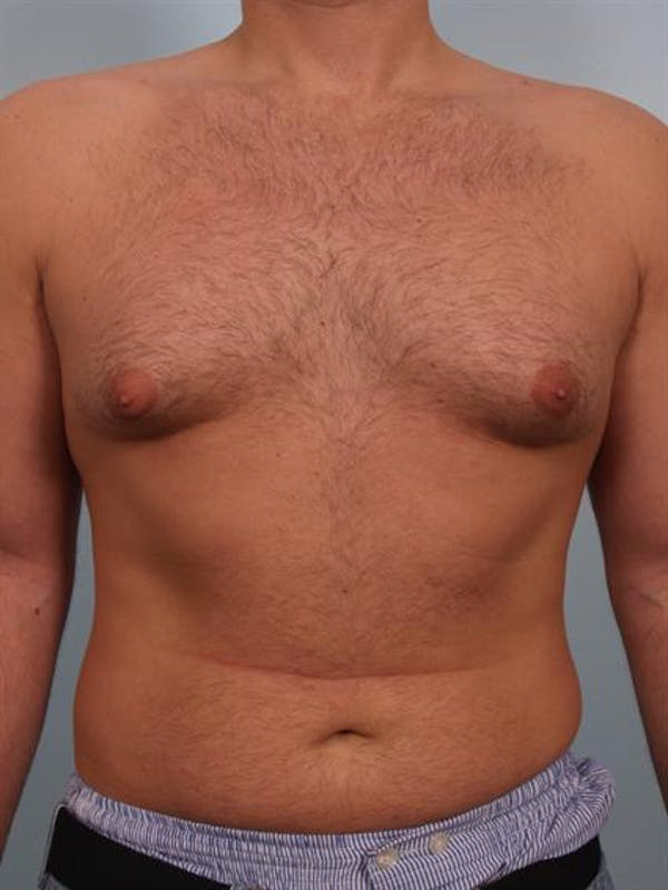 Male Breast/Areola Reduction Gallery - Patient 1311034 - Image 3