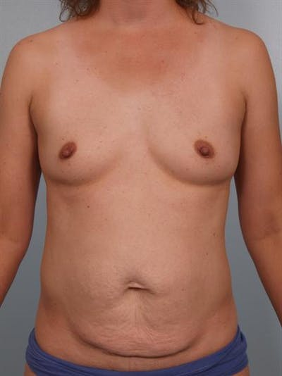 Breast Augmentation Gallery - Patient 1311037 - Image 1