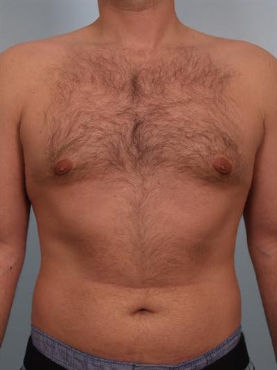 Male Breast/Areola Reduction Gallery - Patient 1311034 - Image 4