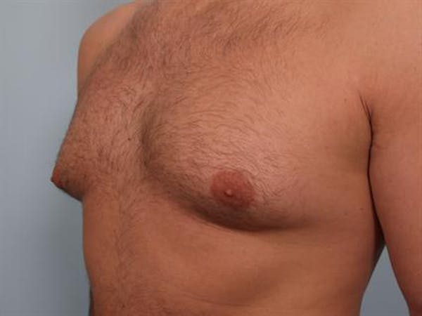 Male Breast/Areola Reduction Gallery - Patient 1311034 - Image 5