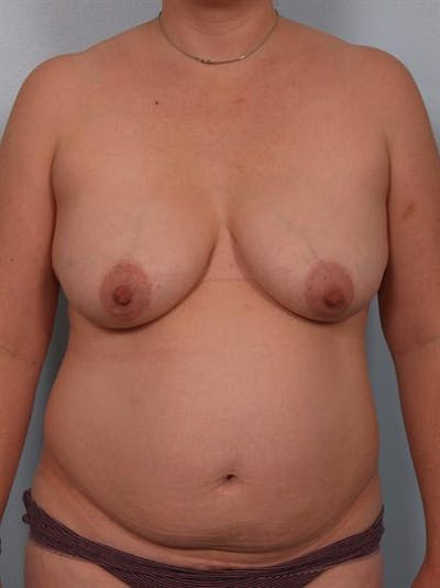 Breast Lift Gallery - Patient 1311036 - Image 1