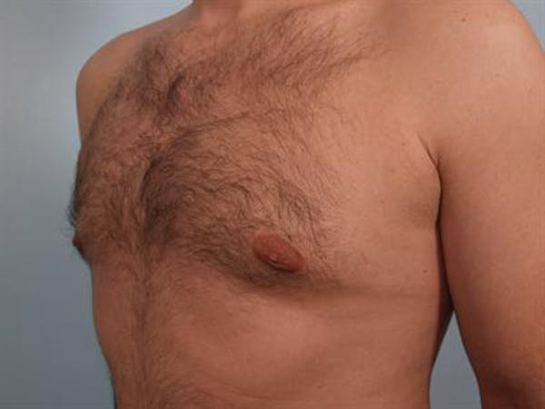 Male Breast/Areola Reduction Gallery - Patient 1311034 - Image 6
