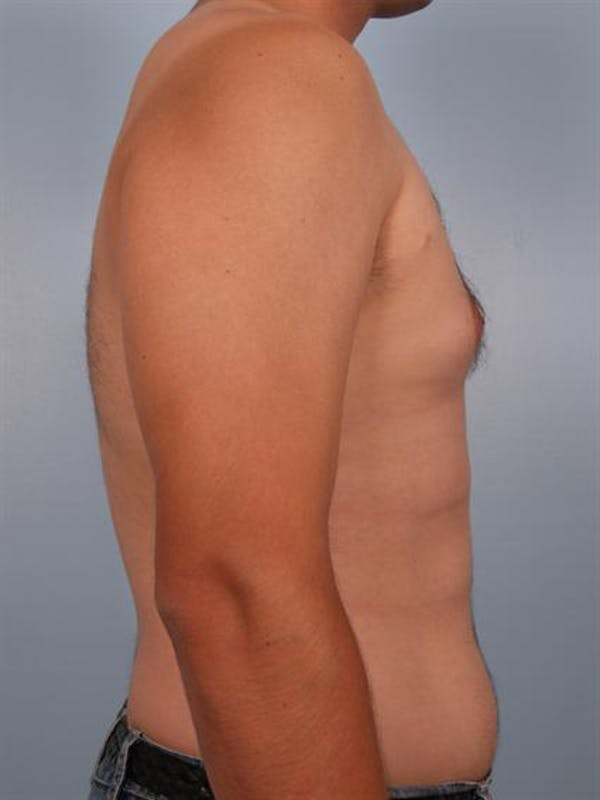 Male Breast/Areola Reduction Gallery - Patient 1311039 - Image 1