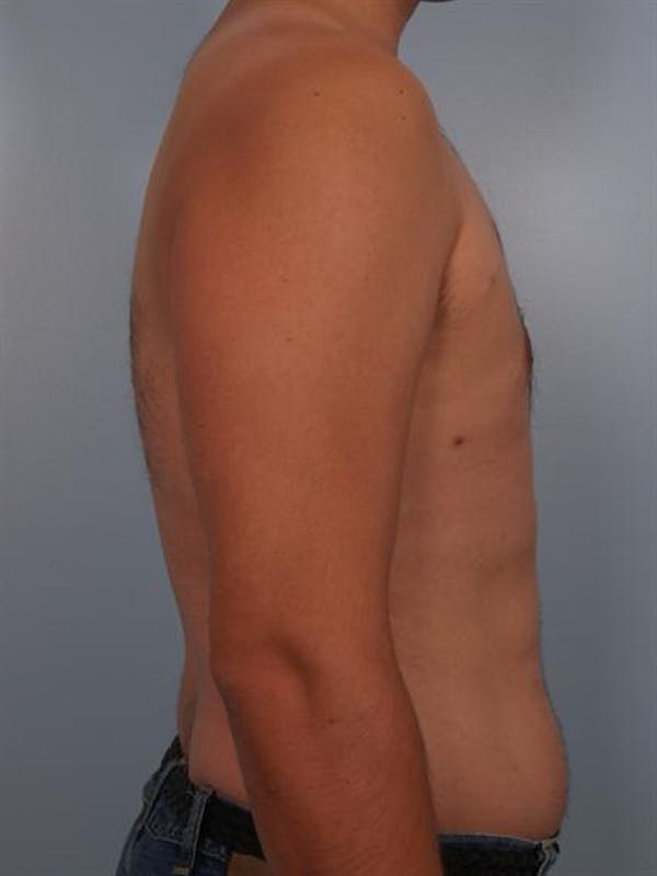 Male Breast/Areola Reduction Gallery - Patient 1311039 - Image 2