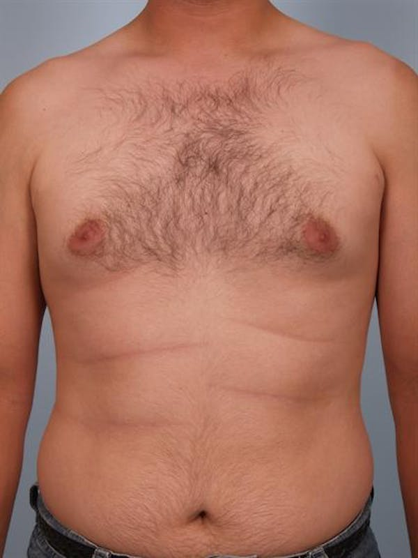 Male Breast/Areola Reduction Gallery - Patient 1311039 - Image 3