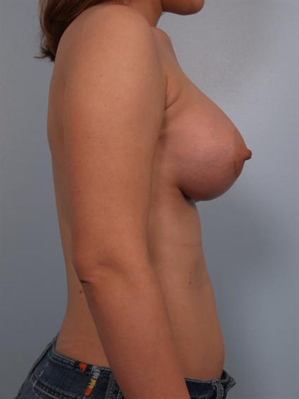 Power Assisted Liposuction Gallery - Patient 1311038 - Image 2
