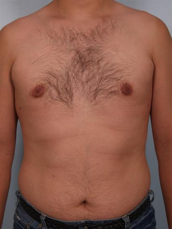 Male Breast/Areola Reduction Gallery - Patient 1311039 - Image 4