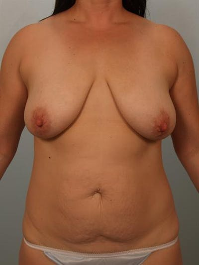 Breast Lift Gallery - Patient 1311041 - Image 1