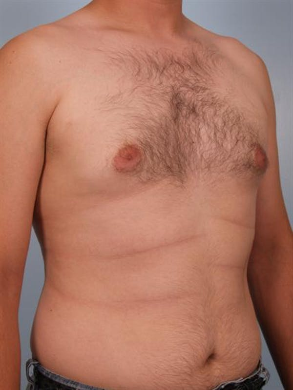 Male Breast/Areola Reduction Gallery - Patient 1311039 - Image 5