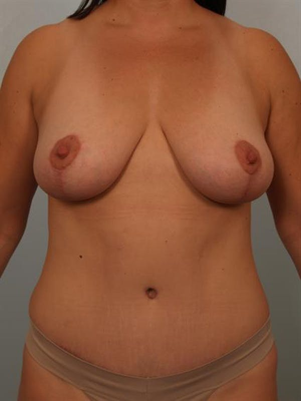 Breast Lift Gallery - Patient 1311041 - Image 2