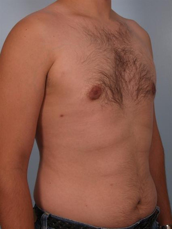 Male Breast/Areola Reduction Gallery - Patient 1311039 - Image 6