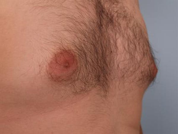 Male Breast/Areola Reduction Gallery - Patient 1311039 - Image 7