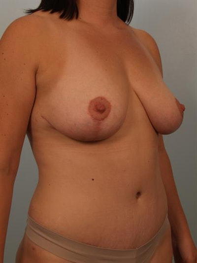 Breast Lift Gallery - Patient 1311041 - Image 4