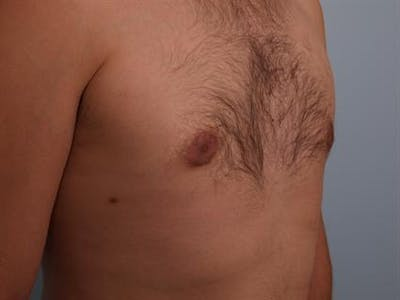 Male Breast/Areola Reduction Gallery - Patient 1311039 - Image 8