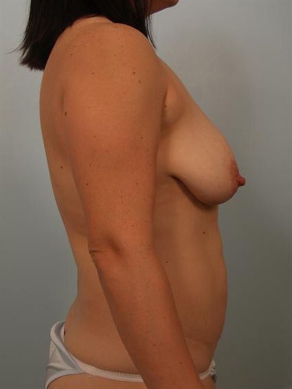 Breast Lift Gallery - Patient 1311041 - Image 5