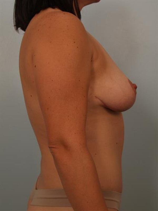 Breast Lift Gallery - Patient 1311041 - Image 6