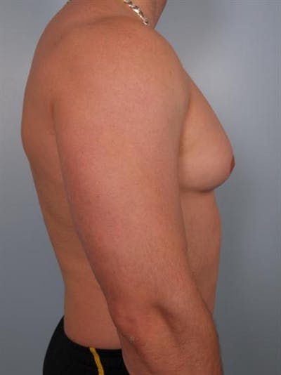 Male Breast/Areola Reduction Gallery - Patient 1311042 - Image 1