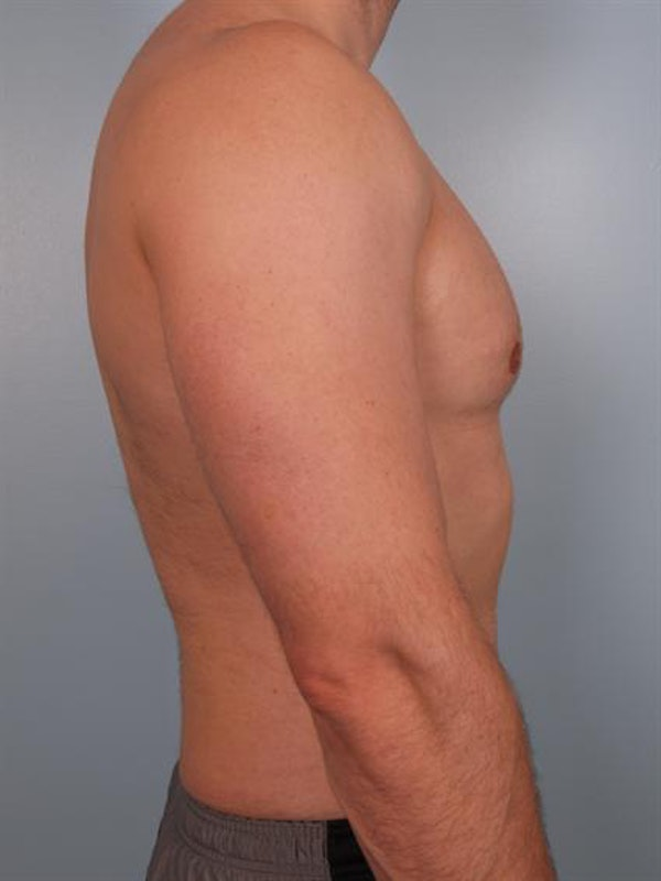 Male Breast/Areola Reduction Gallery - Patient 1311042 - Image 2